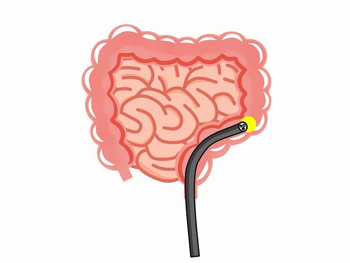大腸カメラで(大腸内視鏡検査)で発見可能な病気